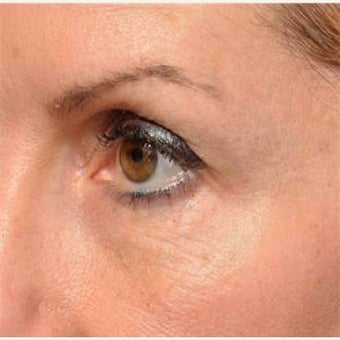 Restylane Under the Eyes Lasts a Long Time - Microcannula Tear Trough Filling after 1747238