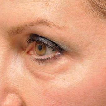 Restylane Under the Eyes Lasts a Long Time - Microcannula Tear Trough Filling before 1747238
