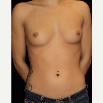 18-24 year old woman treated with Breast Augmentation before 3104093