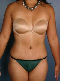 Tummy Tuck Patient after 1401808