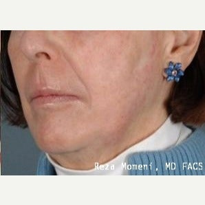 65-74 year old woman treated with Skin Rejuvenation after 2029579
