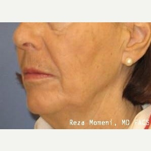 65-74 year old woman treated with Skin Rejuvenation before 2029579
