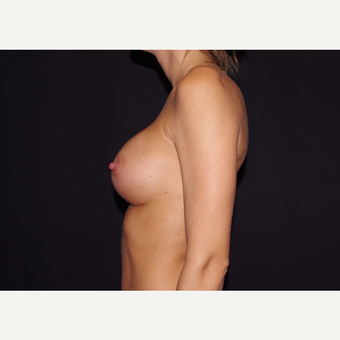 25-34 year old woman treated with Breast Implants after 3441710