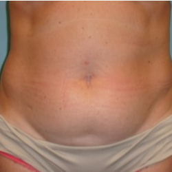 35-44 year old woman treated with Tummy Tuck before 3722300