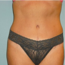 35-44 year old woman treated with Tummy Tuck after 3722300