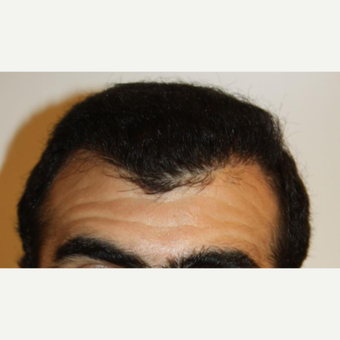 35-44 year old man treated with FUE Hair Transplant after 3809772