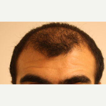 35-44 year old man treated with FUE Hair Transplant before 3809772