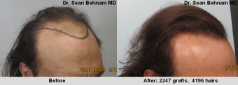 45-54 year old man treated with Hair Transplant