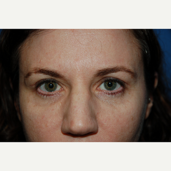 35-44 year old woman treated with Eyelid Surgery after 3782028