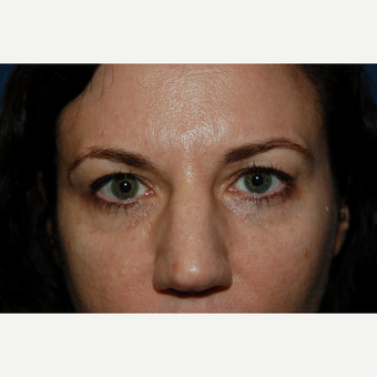 35-44 year old woman treated with Eyelid Surgery before 3782028