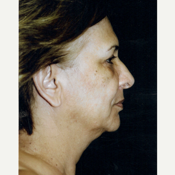 55-64 year old woman treated with Facelift before 3271994
