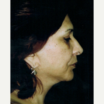55-64 year old woman treated with Facelift after 3271994