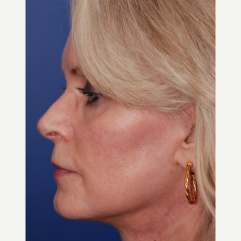 55-64 year old woman treated with Facelift after 3625227