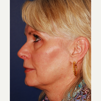 55-64 year old woman treated with Facelift before 3625227