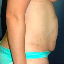 35 year old woman treated with Tummy Tuck before 3578288