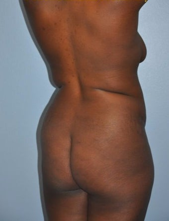 "35-44 year old woman treated with ""Back Scoop"" Liposculpture before 2680087"