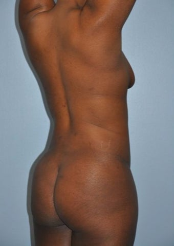 "35-44 year old woman treated with ""Back Scoop"" Liposculpture after 2680087"