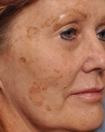 55 Year Old Female Treated For Facial Brown Spots 1149171