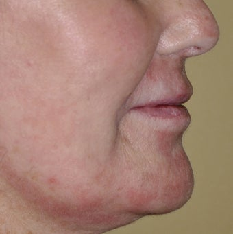 55 Year Old Female Treated For Facial Brown Spots