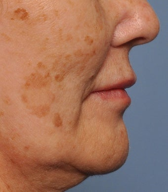55 Year Old Female Treated For Facial Brown Spots before 1149171