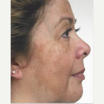 55-64 year old woman treated with Melasma Treatment with Obagi Nu Derm Skin Transformation System before 2579552