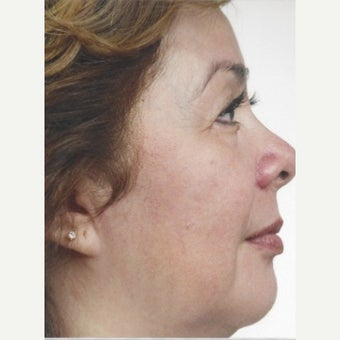 55-64 year old woman treated with Melasma Treatment with Obagi Nu Derm Skin Transformation System after 2579552