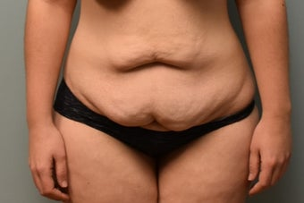 18-24 year old woman treated with Liposuction before 3076845