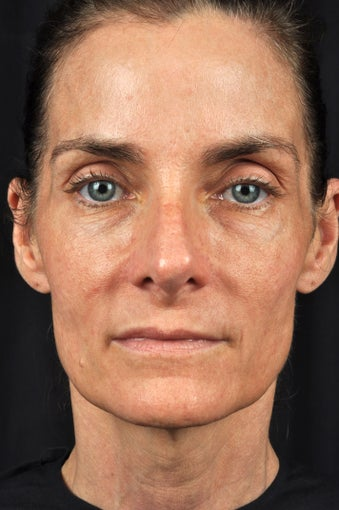 54 year old female with sun damage & loss of volume in face before 1316465