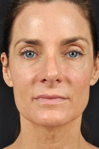 54 year old female with sun damage & loss of volume in face after 1316465