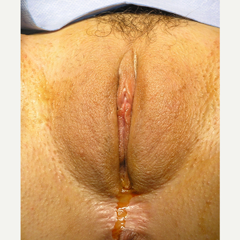 Laser Reduction Labioplasty of the Labia Majora via Vertical Elliptical Incision before 2807160