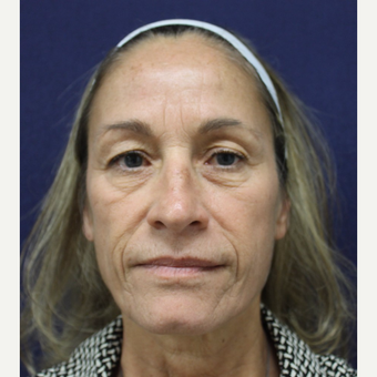 55-64 year old woman treated with Facelift before 3658775