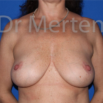 Breast Reduction after 3648475