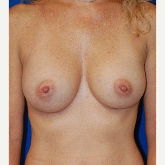 35-44 year old woman treated with Breast Augmentation after 3661465