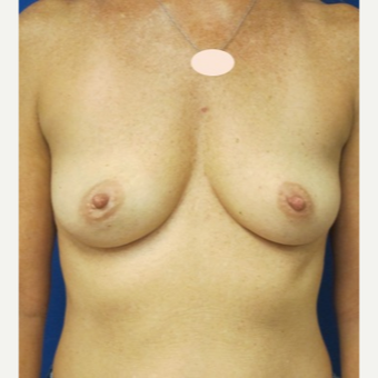 35-44 year old woman treated with Breast Augmentation before 3661465