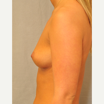 25-34 year old woman treated with Breast Augmentation before 3842362