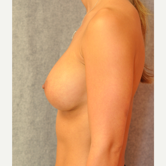 25-34 year old woman treated with Breast Augmentation after 3842362