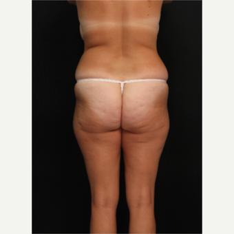 32 year old female with liposuction of hips and thighs before 3576049
