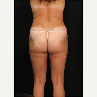 32 year old female with liposuction of hips and thighs after 3576049
