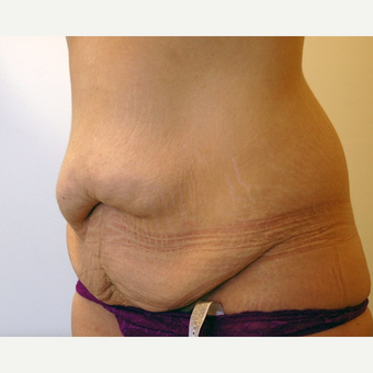 Tummy Tuck before 3108750
