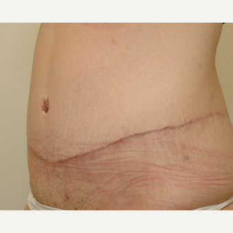 Tummy Tuck after 3108750