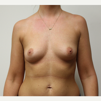 Breast Augmentation before 3417732