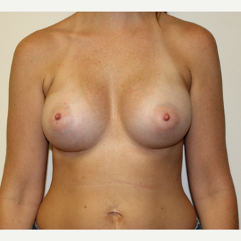 Breast Augmentation after 3417732