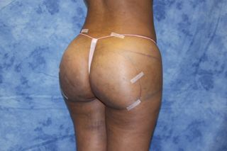 Brazilian Butt Lift and creating curves 670362