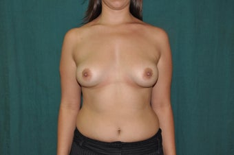 Breast Augmentation before 1356075