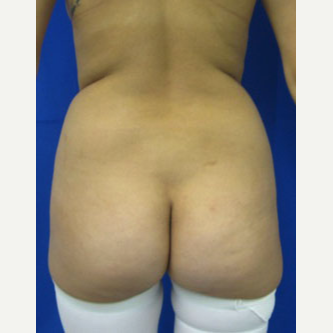 Liposuction before 3094204