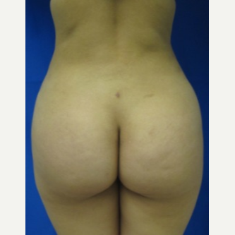 Liposuction after 3094204