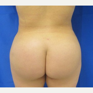 Liposuction after 3094179