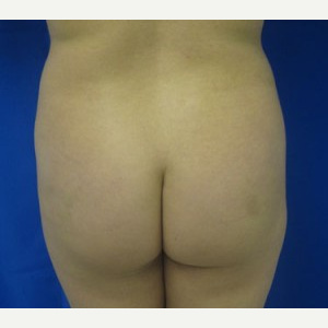 Liposuction before 3094179