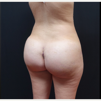 25-34 year old woman treated with Tumescent Liposuction after 3629927