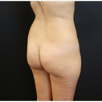 25-34 year old woman treated with Tumescent Liposuction before 3629927